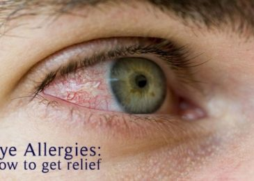 How to Get Rid of Eye Allergies? | Symptoms and Treatments
