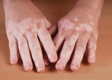 spots on hands