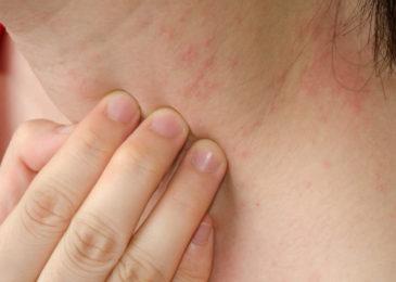 Summer Skin Allergies
