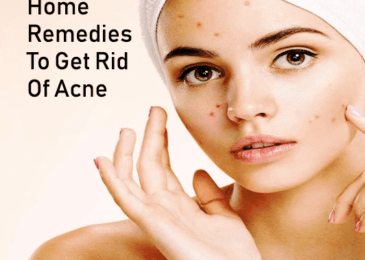 Best Home Remedy For Acne